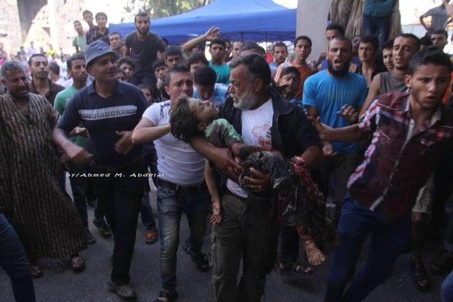 man carrying injured child